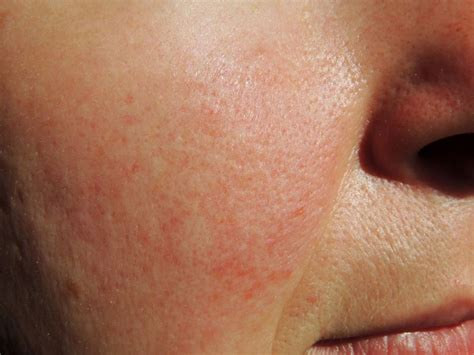 Updated Recommendations for Clinical Management of Rosacea